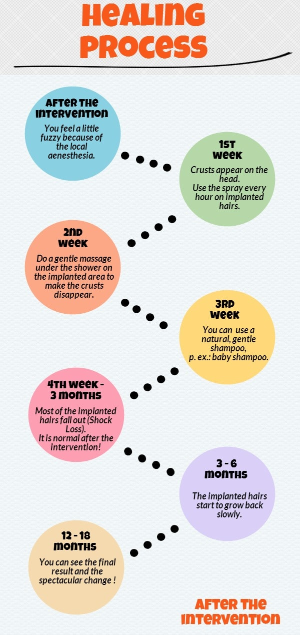 Healing process after hair transplant surgery - infographic.