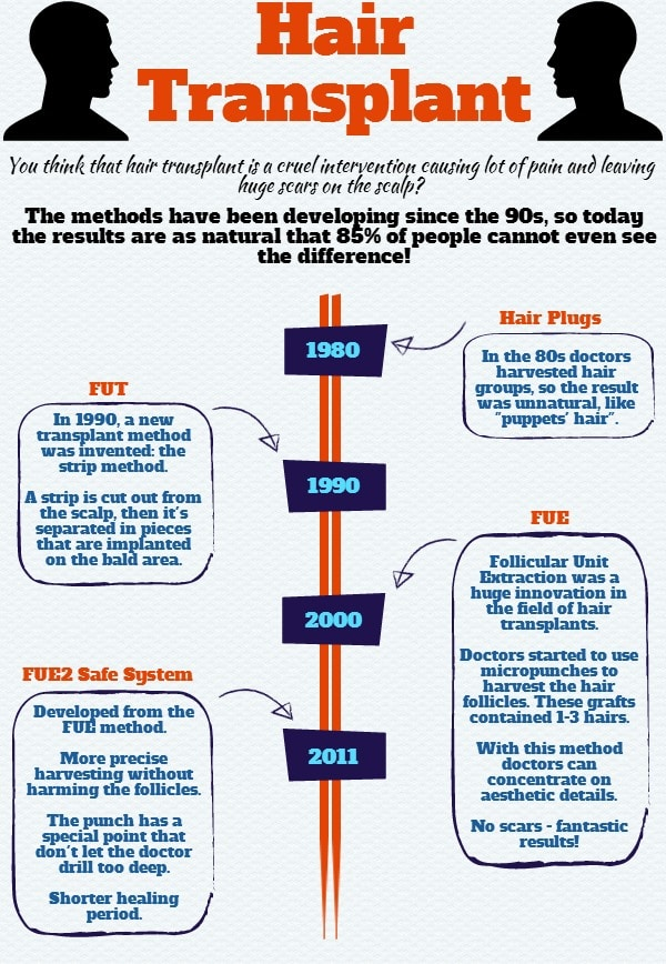 History of hair transplant and FUE procedure in an infographic.