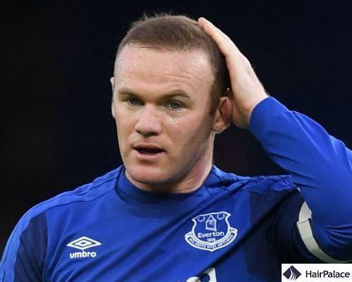 Wayne Rooney hair transplantation