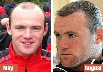 Image result for wayne rooney before and after hair transplant