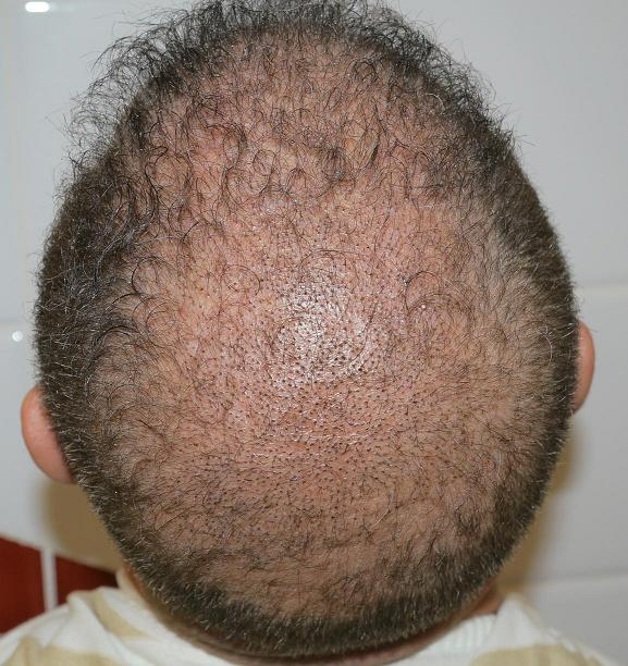 Picture of a patient 1 week after hair transplantation.