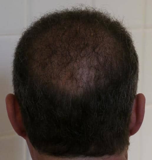 Result of a FUE hair transplant - 1 year after the surgery.