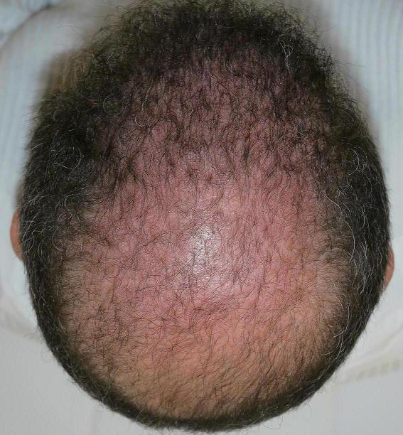 Result of hair surgery 3 months after the intervention.