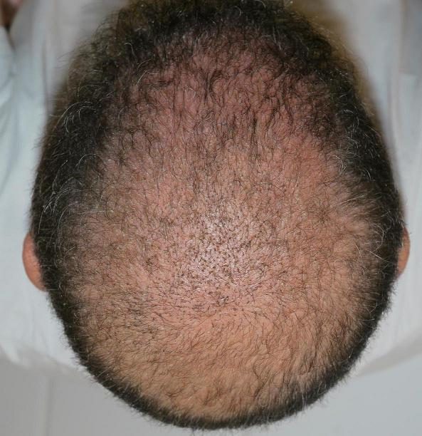 Patient 3 week after a hair surgery.