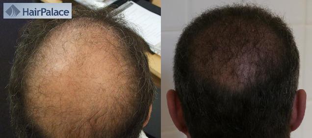 avant apres greffe de cheveux resultat final_logo