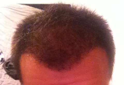 Result of a hair restoration at Hairpalace.