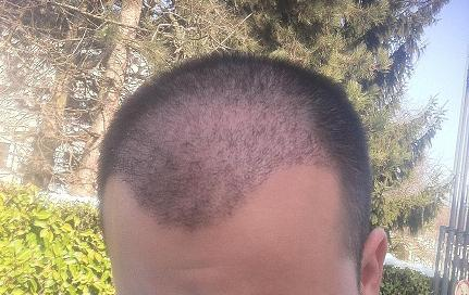 3 weeks after a hair restoration surgery.