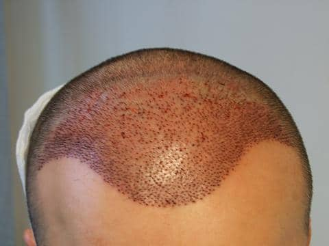 Patient of Hairpalace after the hair transplantation.