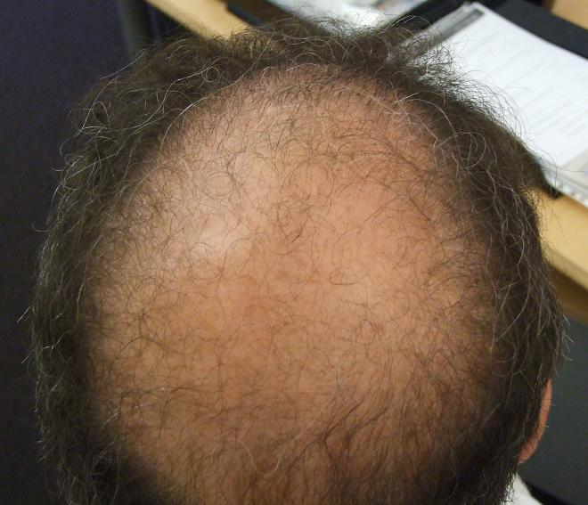 Patient before the hair transplant surgery, at the consultation.