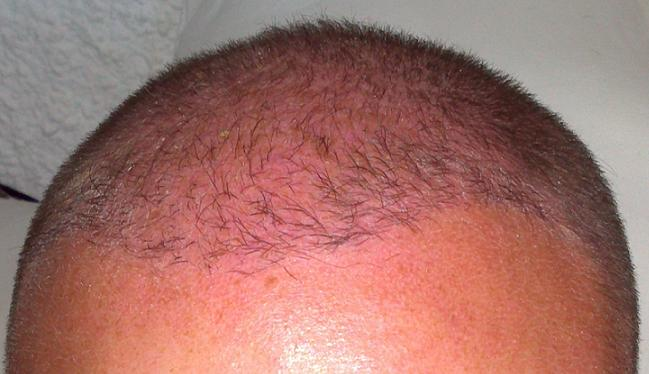 Result of hair transplantation at Hairpalace clinic.