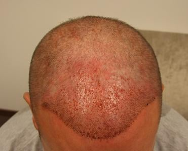 Result after the hair restoration at Hairpalace.
