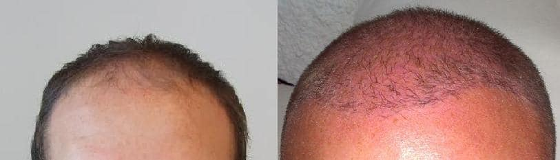 Patient before and after hair transplant surgery at Hairpalace.