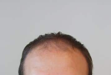 Patient before a hair transplant surgery.