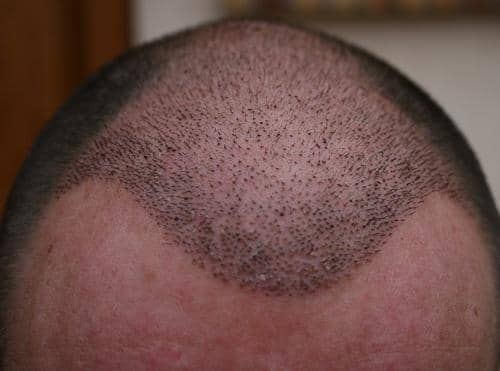 Hairline one week after the hair transplant surgery FUE.
