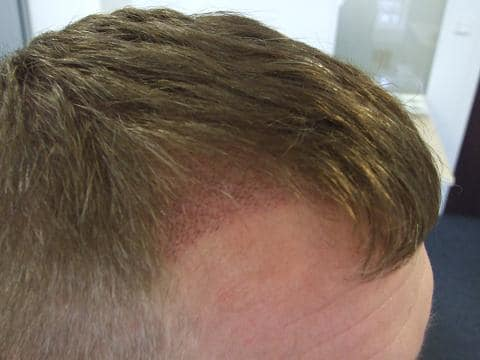 Result  week after hair surgery at HairPalce.
