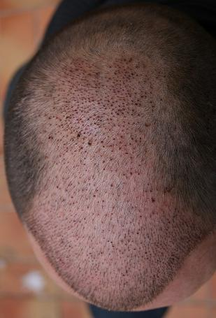 Patient's photo a week after hair transplantation.