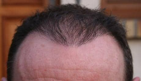 Result of a FUE hair transplant.
