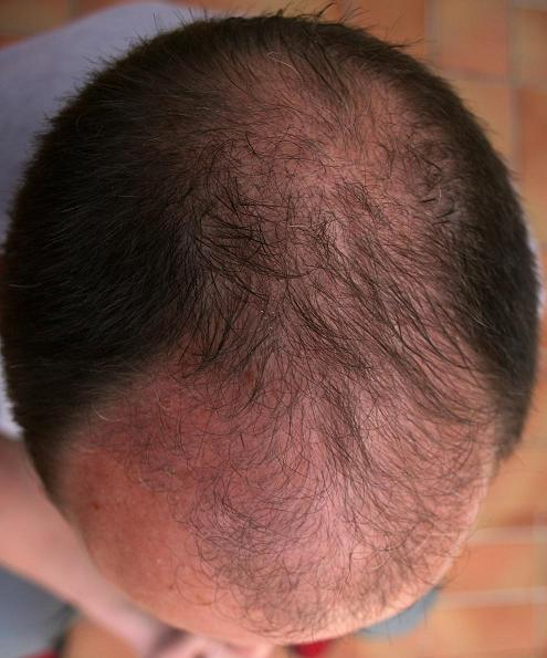 Result of hair restoration surgery 3 months after the intervention.