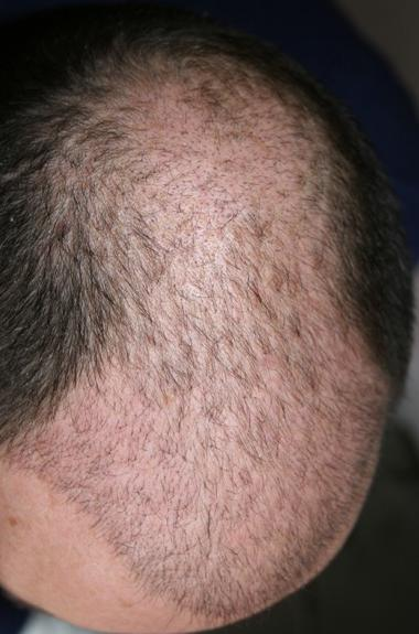 Hair tranplant result 3 weeks after surgery.