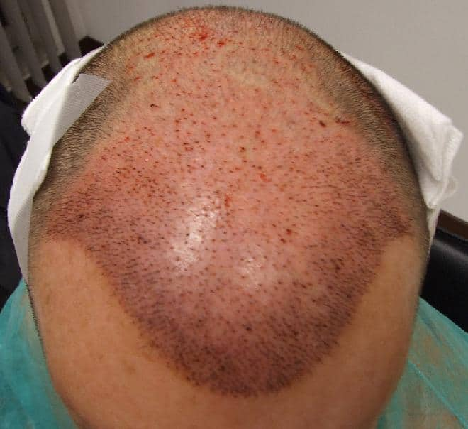 Patient after a hair restoration surgery via the method FUE Safe.