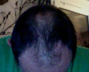 Our patient before the hair transplant.