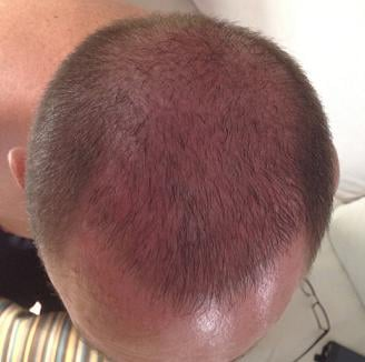Patient 3 weeks after a hair transplantation.