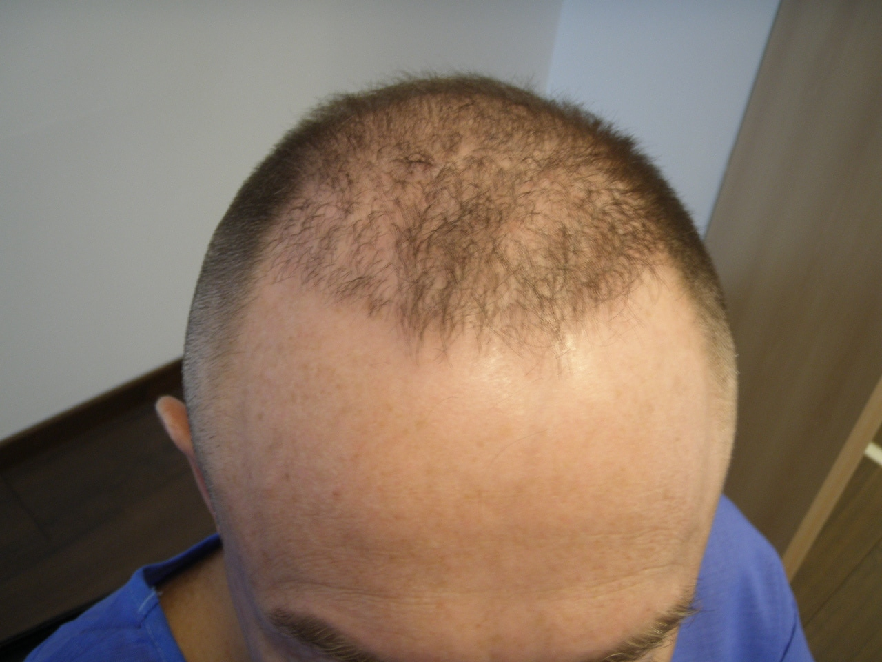 HairPalace's patient before hair transplantation
