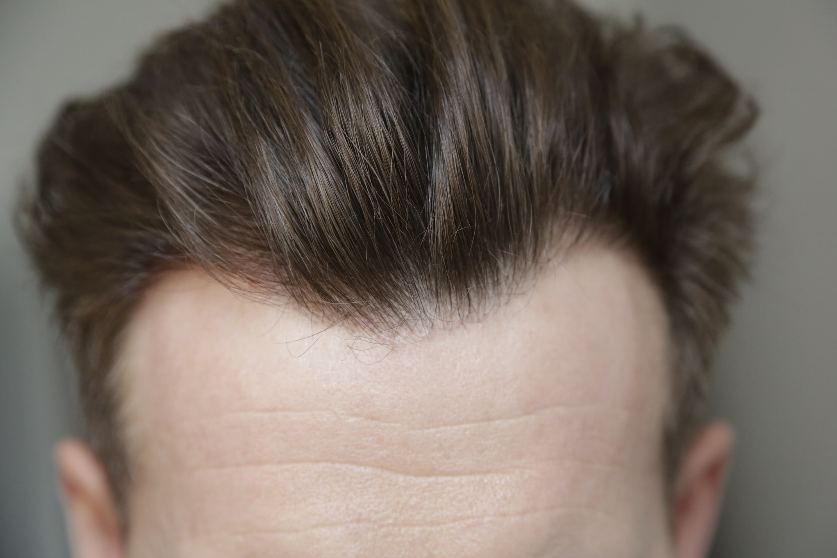 final result hair transplant fue 1 year