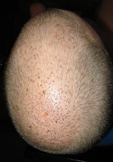 Patient 1 week after the hair restoration.