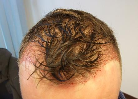 Result right after hair transplantation and review on HairPalace.