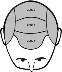 The 3 zones where we can implant hairs.