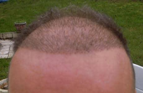 1-week result after hair tranplant.