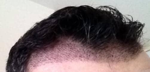 First check up 1 week after hair surgery.