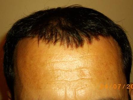 1 year result hair transplant