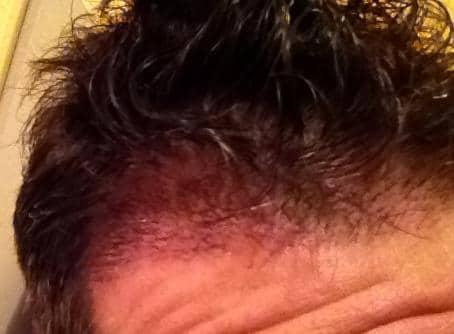 3 weeks checkup after a hair transplant.