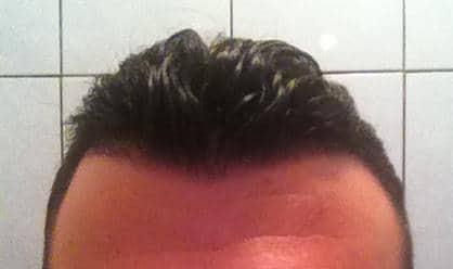 Healed scalp 3 weeks after hair restoration.