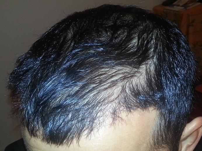 HairPalace's patient 6 month after the hair transplant surgery.