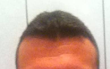 Result 6 months after a hair transplantation.