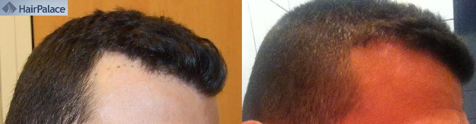 Result of a hair transplant. Photo before-after.
