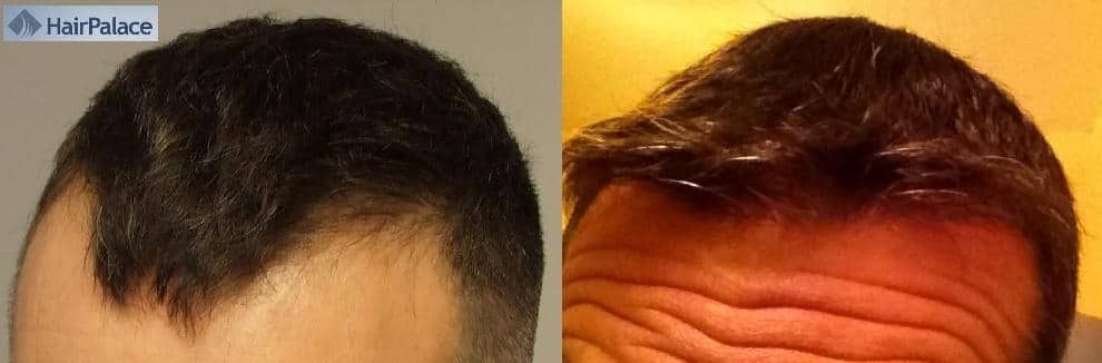 Before and after photos of a hair transplant patient.