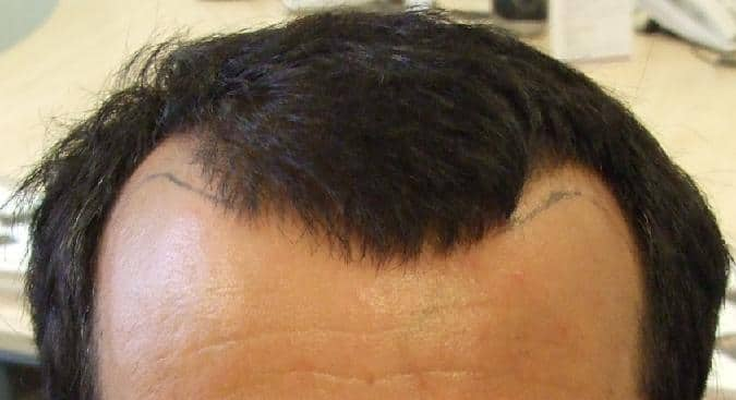 Patient HairPalace before hair transplant procedure.