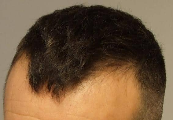 Patient HairPalace before hair transplant surgery.