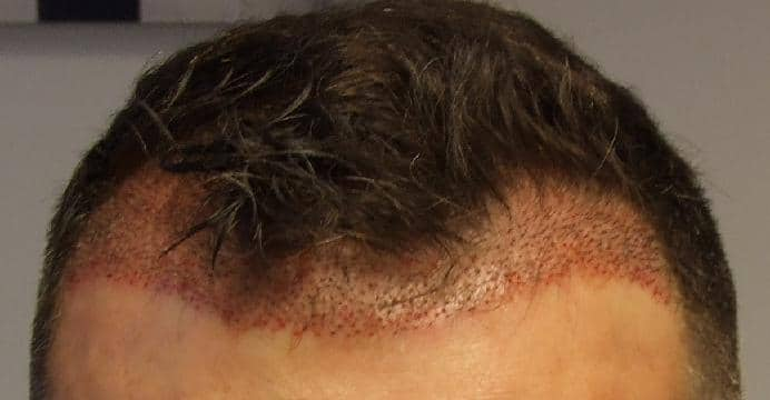 Patient after hair transplant.