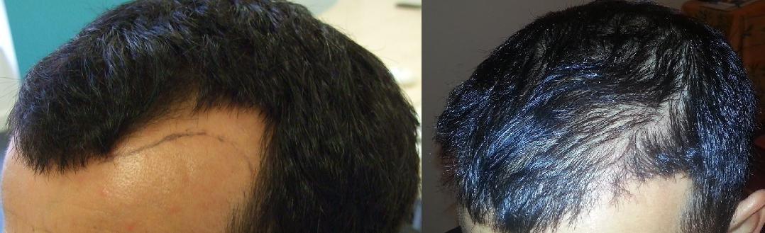 hair transplant result before after