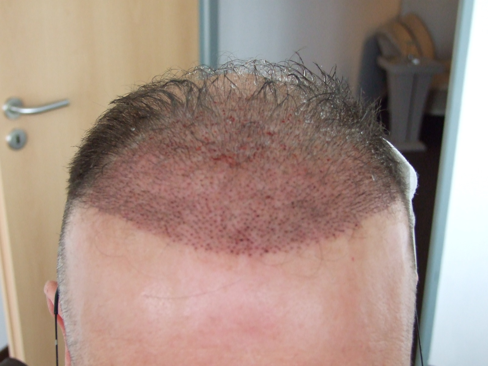 Patient's head after the hair transplant.