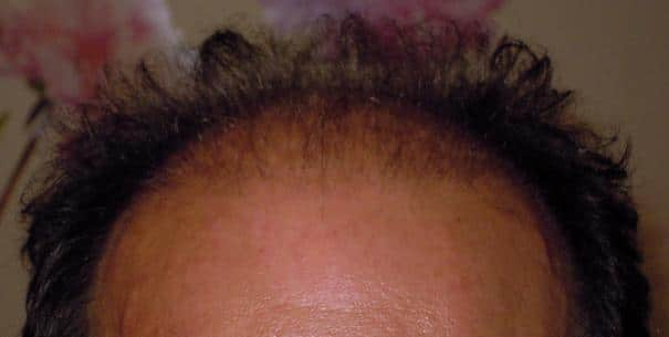 3-month result after a hair surgery.
