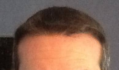 Final result of a hair transplant at HairPalace.