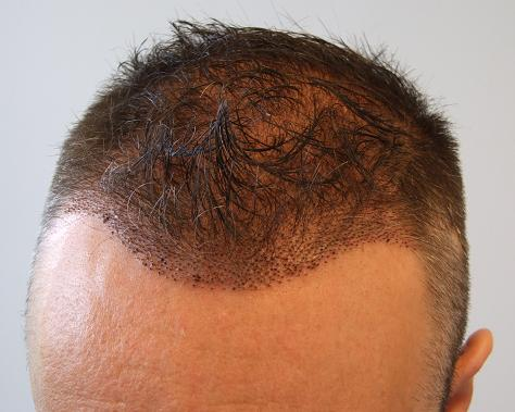 1 week check up after a hair transplant surgery.