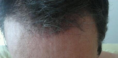 3-month control after hair restoration surgery.