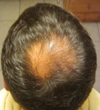 Checkup 3 months after hair surgery.